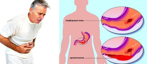 Кровяное давление при гастрите не падает, оно снижается при кровоточащей язве желудка
