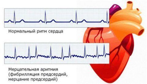 Аритмия мерцательная