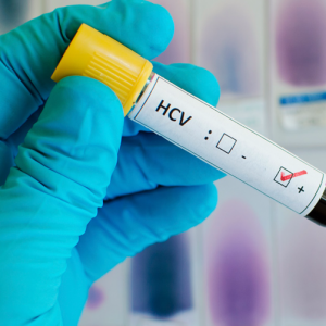 Расшифровка количественного анализа на гепатит С