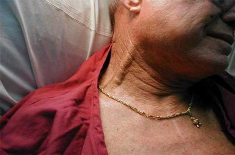 Набухание шейных артерий