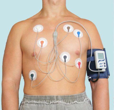 Мониторирование сердечного ритма по Холтеру