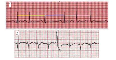 ЭКГ синусовой аритмии (1) и экстрасистолы (2)