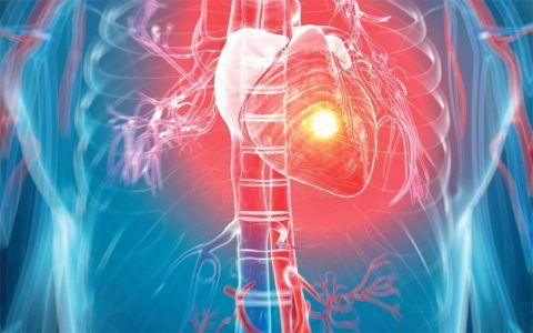 Бисопролол-прана применяется для профилактики повторного инфаркта миокарда