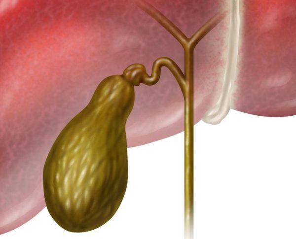 Удаление желчного пузыря: особенности процедуры, реабилитация