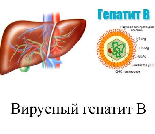 Гепатит B: особенности заболевания и методы лечения