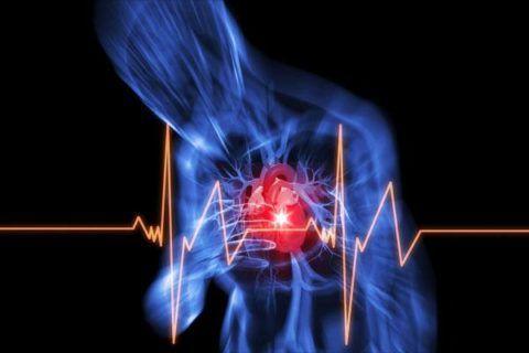 Спонтанная стенокардия напряжения
