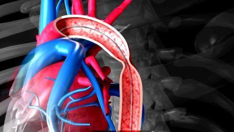 Сужение главного кровеносного сосуда — один из тяжелых пороков сердца