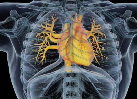 Обострение артериальной гипертензии