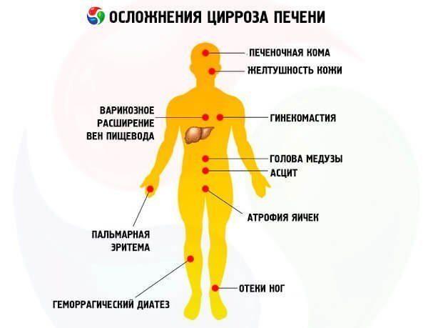 Особенности лечения цирроза печени