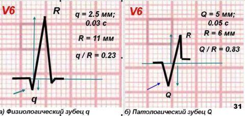 Изменения показателей на ЭКГ.