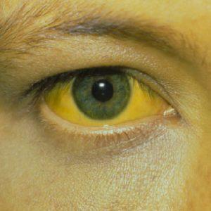 Последствия желтухи у детей и взрослых