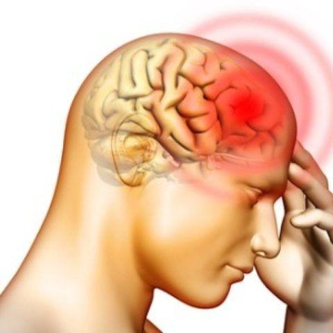 Сильная головная боль – симптом аневризмы мозга.