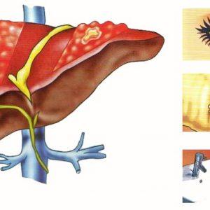 Симптомы гепатита А у взрослых и детей