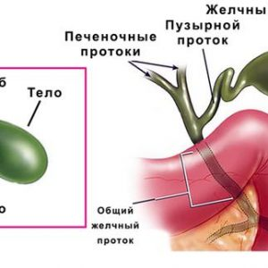 Желчегонные препараты при перегибе желчного пузыря