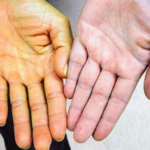 Гепатит С: генотип 1b и его лечение