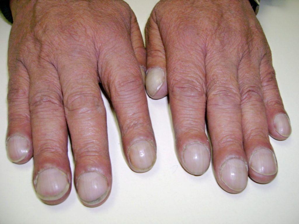«Барабанные пальцы» и ногти в виде часовых стекол — яркие признаки заболевания