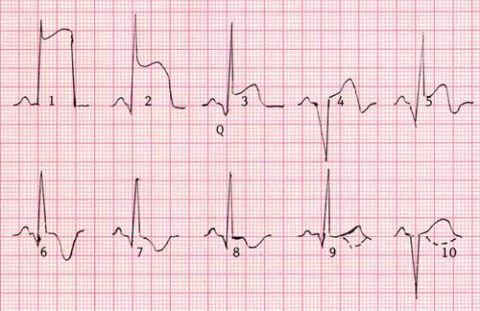 На фото патологические изменения кардиограммы при инфаркте миокарда.