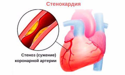 На фото сужение просвета артерии, которое влечет стенокардию и некроз тканей сердца.