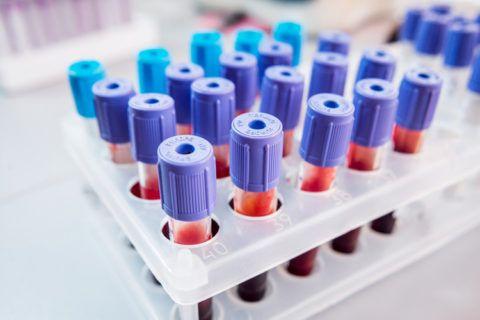 Биохимия крови позволяет выявить наличие белков сердечной мышцы и подтвердить ИМ.