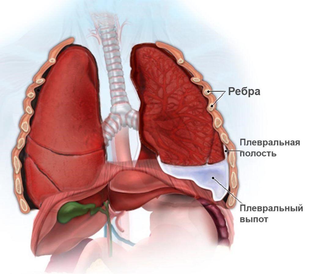 Левосторонний экссудативный плеврит может спровоцировать боль в груди