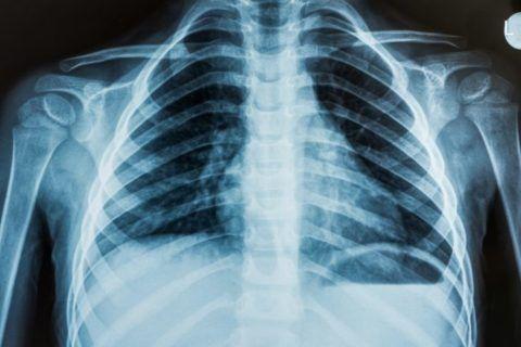 Рентгенограмма грудной клетки.