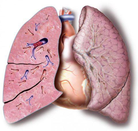 Тромбоэмболия легочных артерий