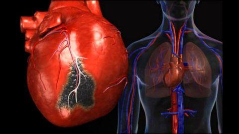 Основной причиной дисфункций ритма считается патология данного органа.