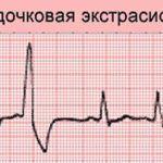 Эктопический очаг возбуждения расположен в желудке