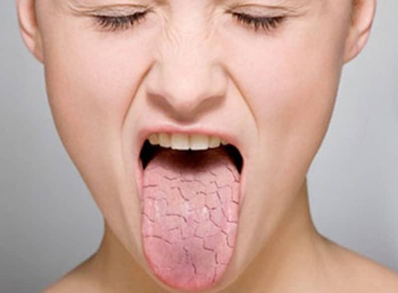 Сухость во рту: причины и решение неприятной проблемы