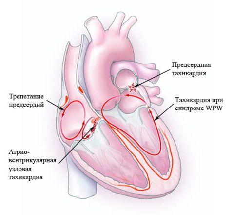 На фото распространённые виды патологий сердечно – сосудистой системы.