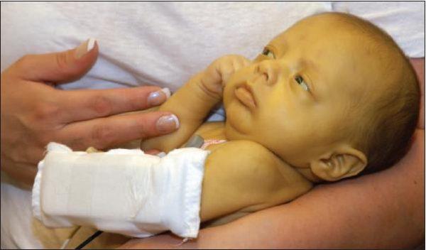Желтуха у новорожденного: лечение в домашних условиях