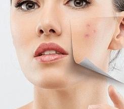 Плоские бородавки причины появления, медикаментозные и народные методы лечения