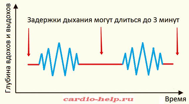 Спирограмма дыхания Чейна-Стокса