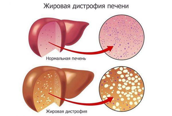 Выбор препаратов для лечения жирового гепатоза