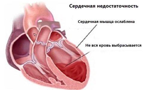 При сердечной недостаточности диагностируется слабость сердечной мышцы, что приводит к снижению тонуса и застою крови.