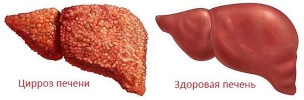 Последняя стадия цирроза печени: симптомы, лечение, угроза для жизни
