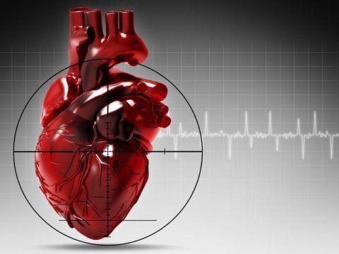 Инфаркт миокарда приводит к летальному исходу.