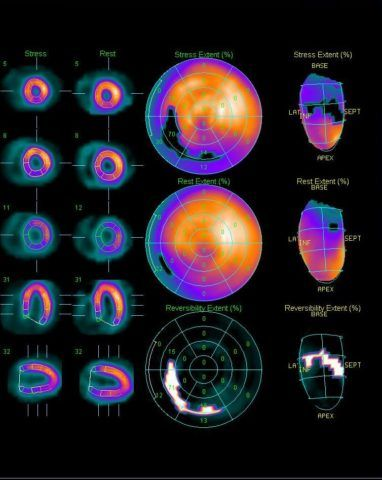 Сцинтиграфия миокарда