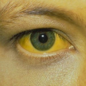 Все о желтухе: виды, классификация, причины