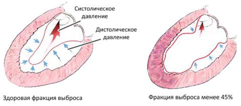 Схематичное изображение нарушения фракции выброса крови из левого желудочка