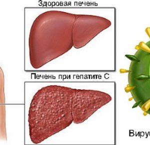 Можно полностью вылечить хронический гепатит В?