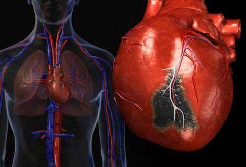 Постинфарктный очаговый кардиосклероз