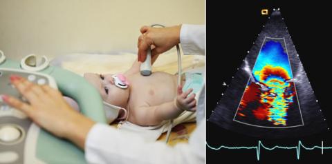 Процедура ЭхоКГ проходит безболезненно и не доставляет ребенку дискомфорта