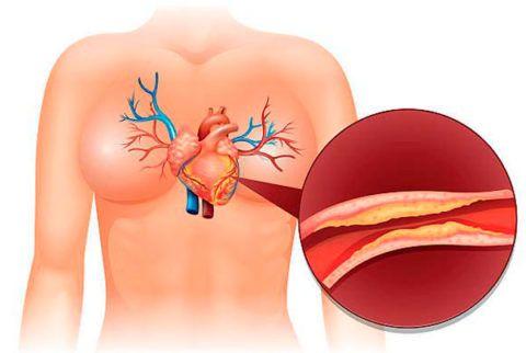 Атеросклеротическое сужение кровеносных сосудов