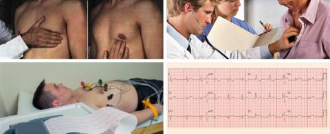 Пальпация верхушечного толчка, аускультация сердечных тонов и ЭКГ-обследование