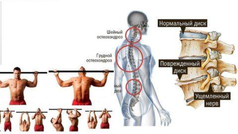 Висеть и подтягиваться на турнике очень полезно при наличии остеохондроза