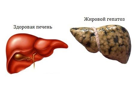 Симптоматика и лечение жировой дистрофии печени
