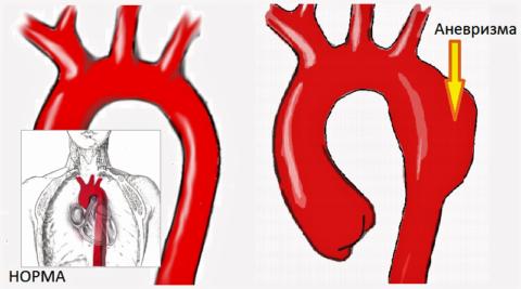 Расслаивающаяся аневризма грудной части аорты