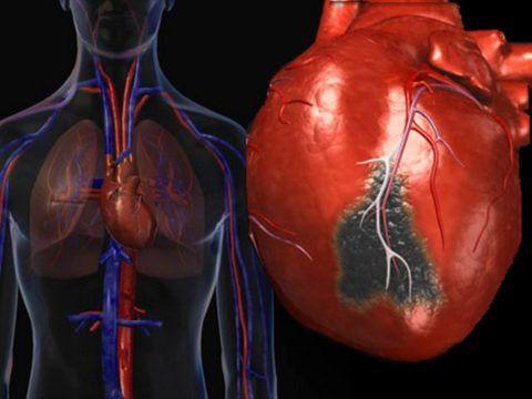 Некроз сердечной мышцы сопровождается различными осложнениями