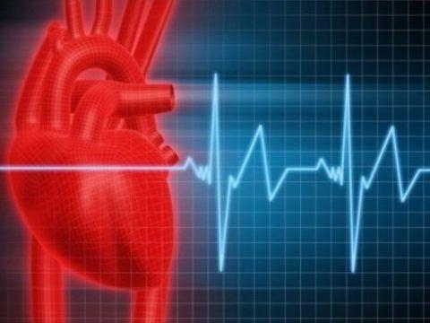 Аритмическая форма инфаркта приводит к аритмическому шоку.